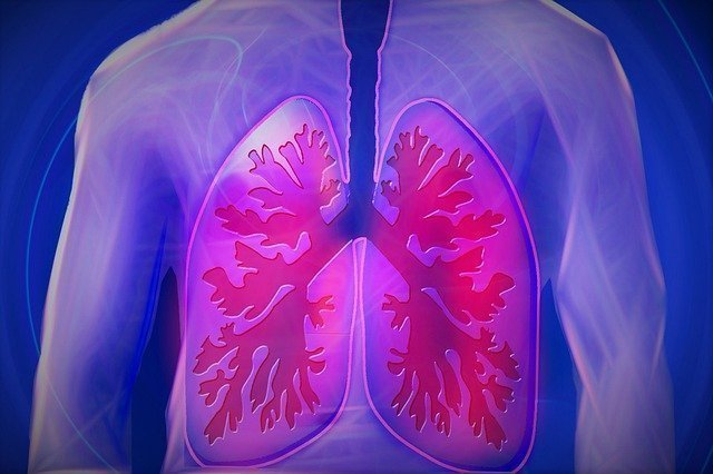 polmoni- stampa 3D generalista - plastica - cancro